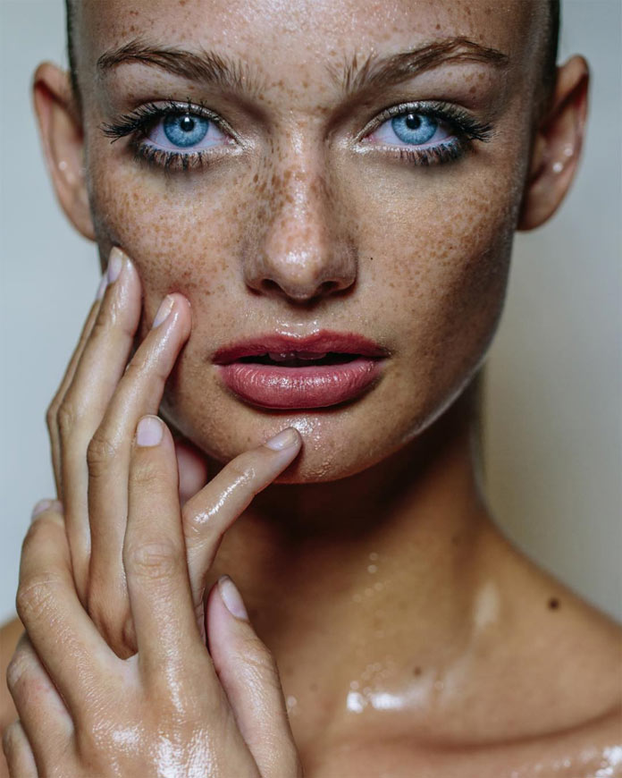 Stunning blue eyes and coutnless freckles.