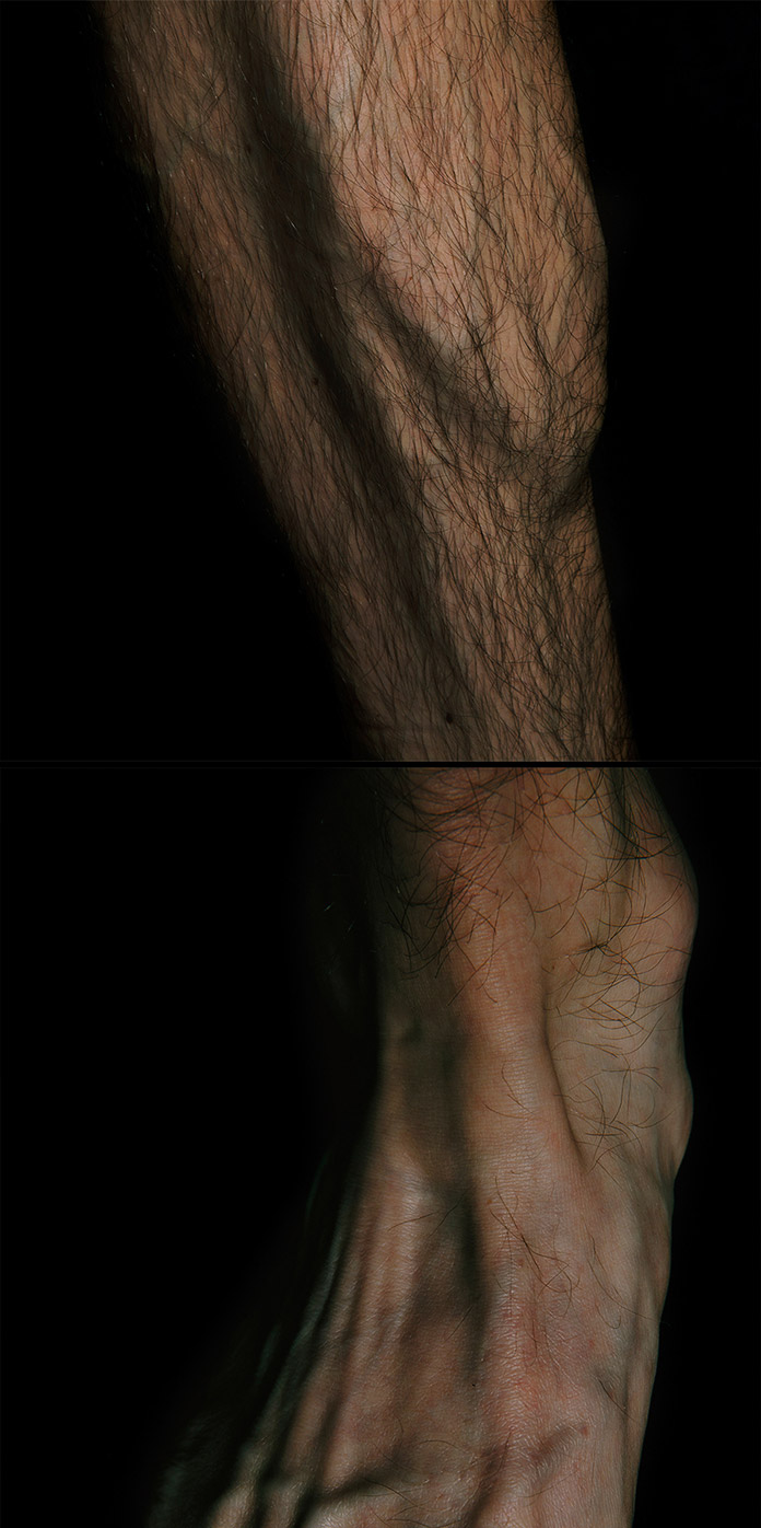 Skin stretches over bones and tendons.